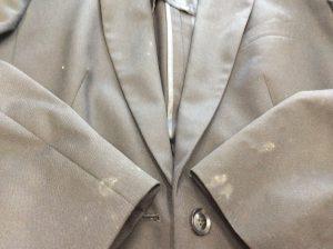 衣類のカビ処理ビフォー